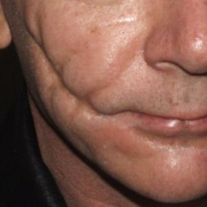 """A closer look at the deep facial scarring created with non-flexible collodion. Unlike putties or appliances--which add material to the face in order to create the illusion of scars--collodion allows the artist or performer to actually """"sculpt"""" the flesh of the face, creating scars that are startlingly realistic, even up close, without makeup."""